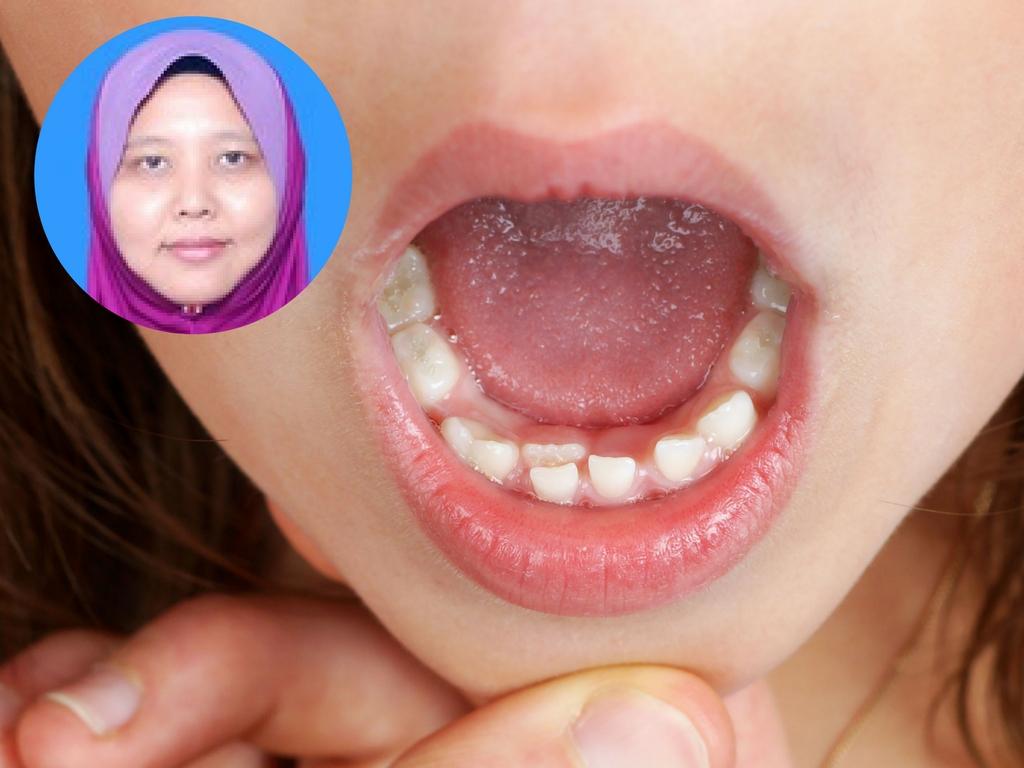 Gigi Kekal Sudah Tumbuh Di Belakang Perlukah Gigi Susu Dicabut Ini Kata Doktor Gigi Pa Ma