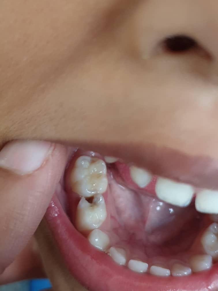 Anak Baru 5 Tahun Gigi Berlubang Kena Cabut Ke Tampal Ini Penjelasan Doktor Pa Ma
