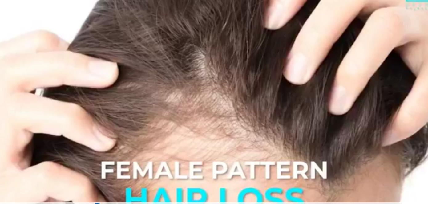 cara atasi rambut gugur